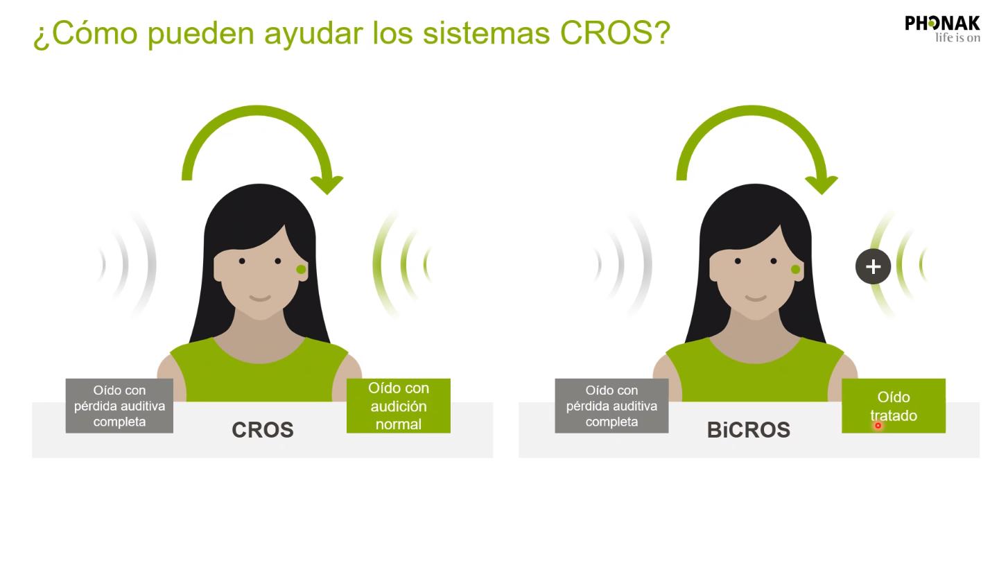 Phonak Cros: Oído derecho con pérdida auditiva total, oído izquierdo con audición (izq), o con pérdida corregida con audifono (dcha).