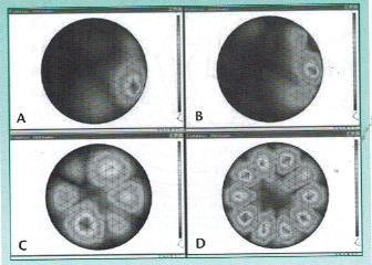 Vibración a 1000 Hz en diferentes intensidades ( 40, 60, 80 y 100 dB SPL)