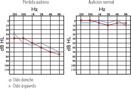 Audiograma de un hipoacúsico y de un normo oyente. Observese que los umbrales del primero son más bajos.