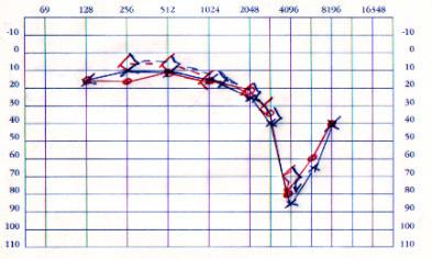 Audiograma de trauma acústico bilateral