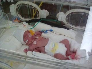 NICU入院双子赤ちゃん