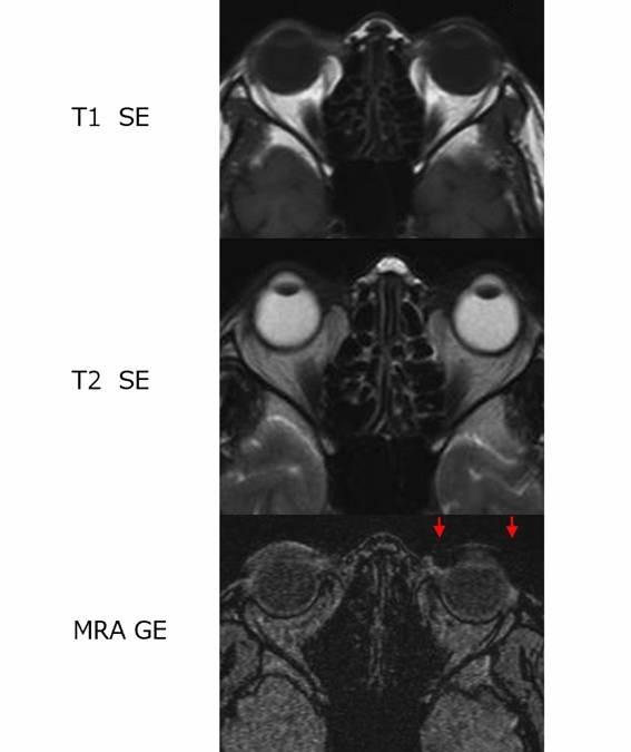 自験例のMRI画像