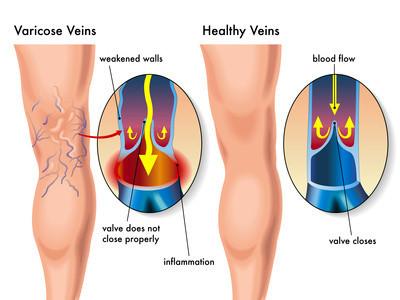 Gesunde und kranke Venen (Krampfadern)