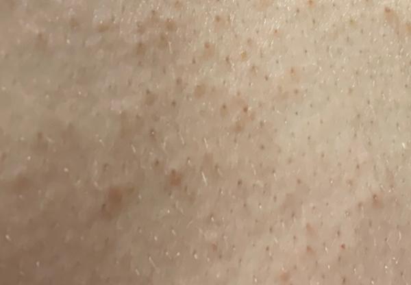 ノンエー石鹸の使用前の肌