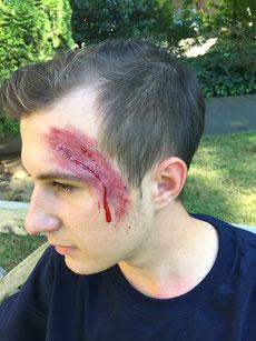 Erste Hilfe bei Kopfverletzungen