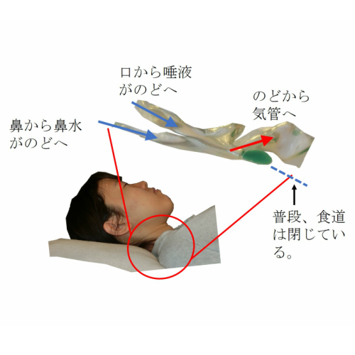 あおむけで寝ていると口から唾液が、鼻から鼻水がのどに溜まり、あふれると気管に入り誤嚥する