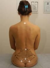 mal di schiena e trattamento muscolare