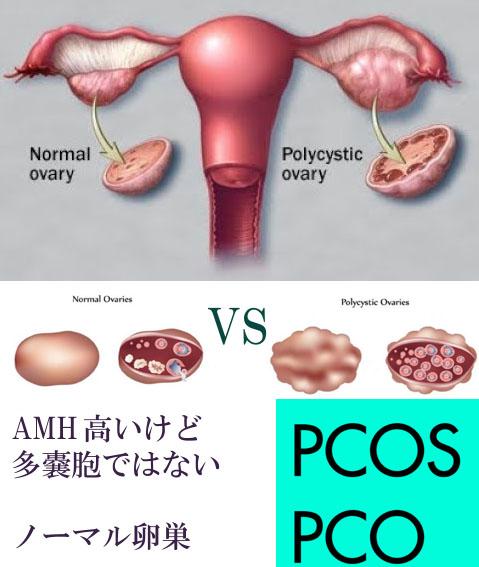 AMH高いけれど、多嚢胞ではないグレー、PCO、PCOS
