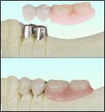コーヌス・テレスコープ義歯