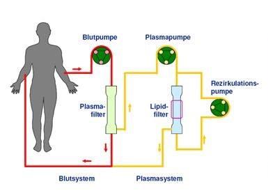 DFPP Lipidfiltration 血液净化 德国欧亚商旅