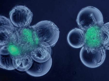 德国鲜活细胞治疗中心 羊胎素 胚胎脐血免疫干细胞 美容养颜抗衰老