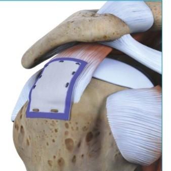 Verstärkung des schwachen Sehnen-materials mit einem patch