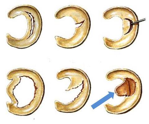 Verschiedene Arten von Meniksusrissen; der blaue Pfeil zeigt einen Riss mit Lappen