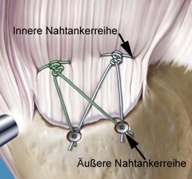 """Sschematisches Bild nach Naht der Sehne in der Doppelreihentechnik (""""double row"""")"""