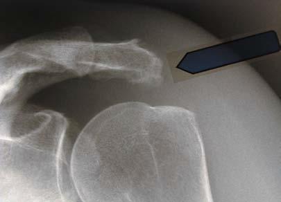 Röntgenbild eines Hakens des Schulterdachs
