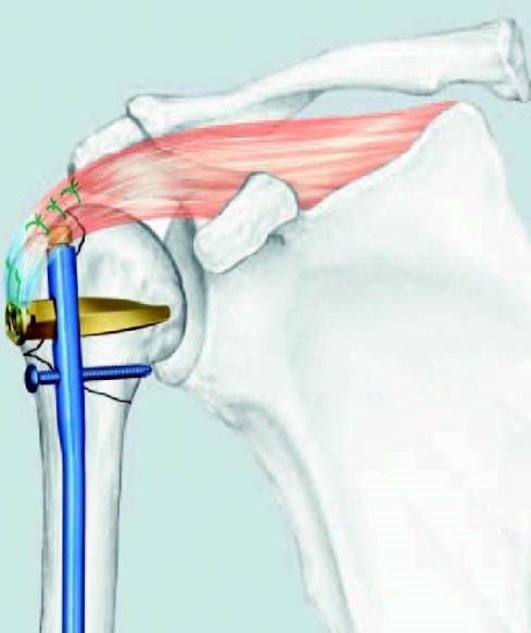 Osteosynthese einer Oberarmfraktur mit einem Marknagel, der durch eine kleine Oeffnung eingeführt wird.