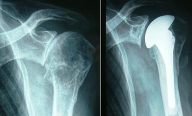 Röntgenbild vor und nach Implantation einer anatomischen Schulterprothese