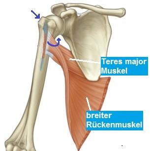 Lenger Rückenmuskel wird ca. 4 cm nach oben verpflanzt