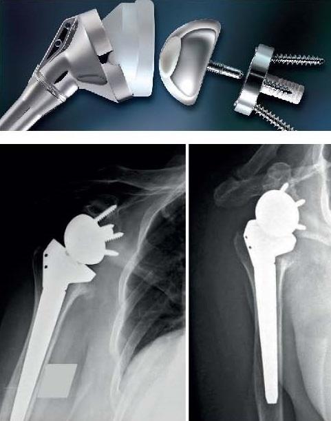 Röntgenbild vor und nach Einbau einer inversen Schulterprothese