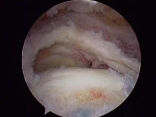 Arthroskopisches Bild einer Supraspinatussehnenruptur