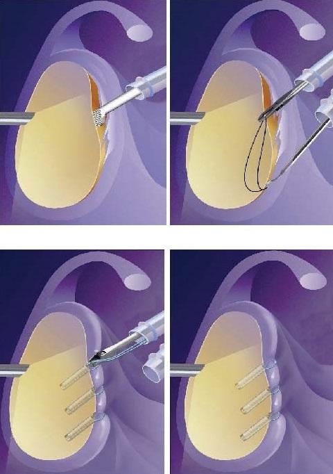 Schematisches Bild einer arthrosko-pischen Refixation der Lippe, der Kapsel und der Bänder am Pfannenrand.