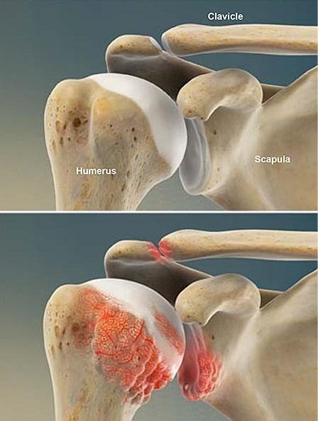 Oben: normales Schultergelenk mit gesundem Knorpel. Unten: Arthrose der Schulter, Knorpel z.T. zerstört, Spornbildung am Oberarmkopf und Pfanne