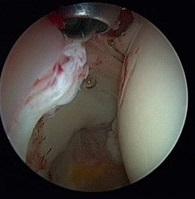 Abb 2 Verletzung der Lippe (Labrum)