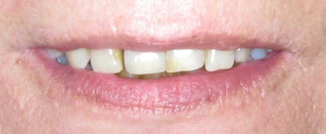 Das Lippenbild vor der Behandlung