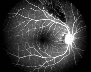 Astvenenthrombose, Fluoreszenzangiografie