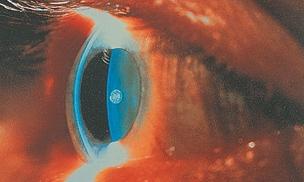 Spaltlampenbild der vorderen Augenabschnitte