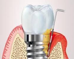 Sondierung eines Implantats mit einer Periimplantitis-Erkrankung