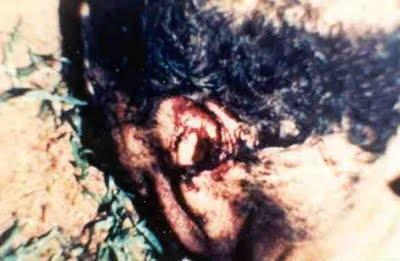 """""""Hemos observado la eliminación de las zonas de órbita derecha e izquierda, vaciado de cavidad bucal, faringe, orofaringe, cuello, derecha y área de la axila izquierda, abdomen, cavidad pélvica, área de la ingle derecha e izquierda"""""""