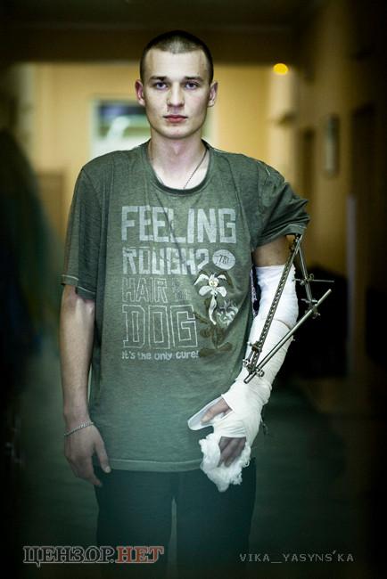 Костя Клепач тепер мріє про нормальний протез ліктя