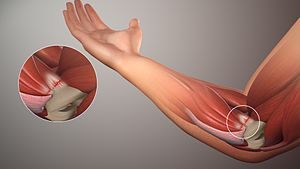 ゴルフ肘 痛み スポーツ障害 治療