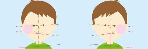 首の歪み頭の位置イメージ画像
