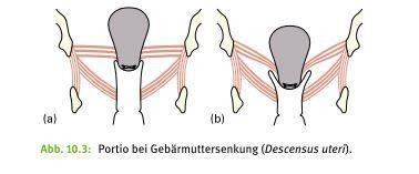 Abbildung aus dem Buch: Palpation für das Beckenbodentraining von E. Hanzal, Ch. Stelzhammer, B. Bartosch, E. Udier