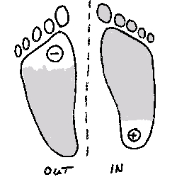 "The most common unfavorable situation in the distribution of pressure . High pressure under the ""heel"" of the inner seat foot."