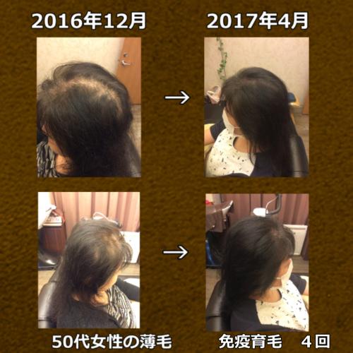 50代女性 多発性脱毛と乾燥による脱毛症の混合
