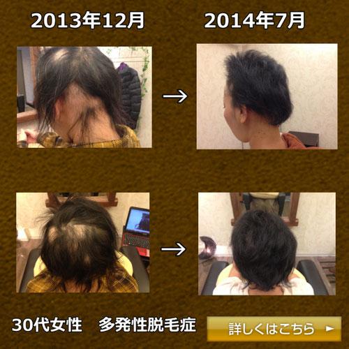 40代女性 多発性脱毛症画像