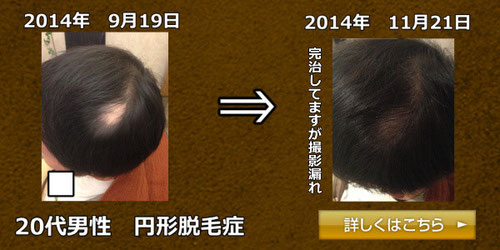 20代男性 円形脱毛症画像2