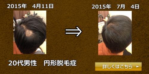 20代男性 円形脱毛症