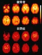 健常者と自閉症の人の脳の断面写真。「セロトニン」の密度が低下していると、暗く見える Image:毎日jp 2010.1.5