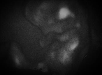 (妊娠3ヶ月目の赤ちゃんの写真)