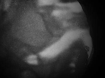 (妊娠5ヶ月目の赤ちゃんの写真)