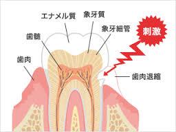 たかす歯科クリニック知覚過敏