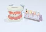 たかす歯科クリニック咬合性外傷