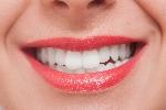 たかす歯科クリニック審美歯科