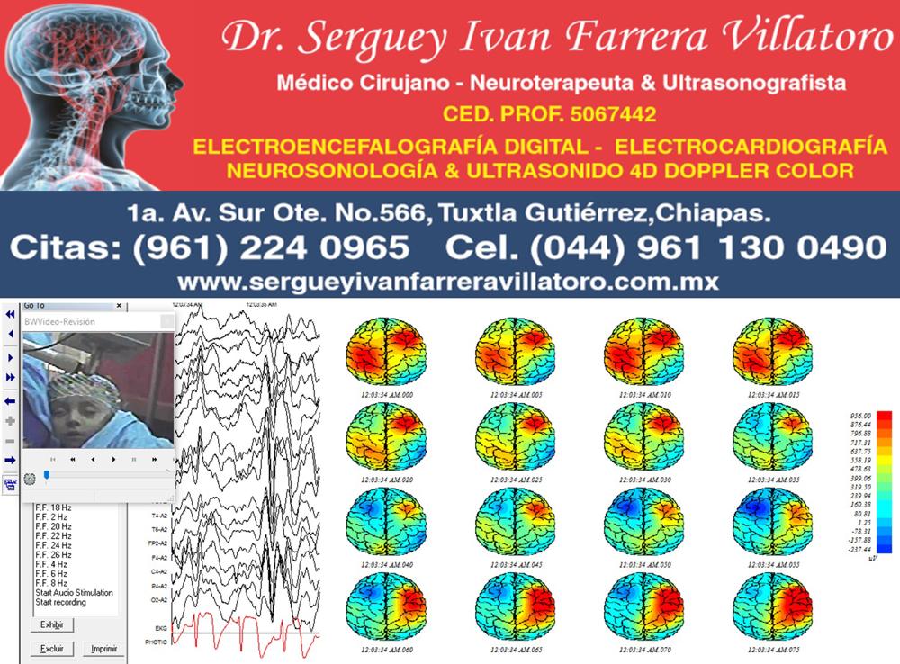 Mapeo cerebral y videoelectroencefalografía