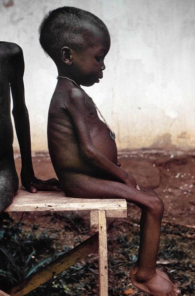 Niña hambrienta en Biafra.