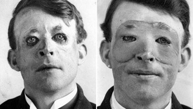 Primeras cirugías plásticas de la Primera Guerra Mundial.